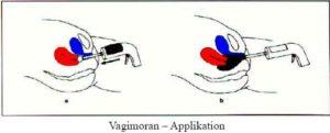 Vagimoran-Applikation - vaginale Moorbehandlung bei Kinderwunsch